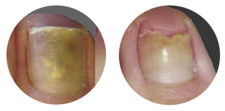 Before & After Toenail Fungus